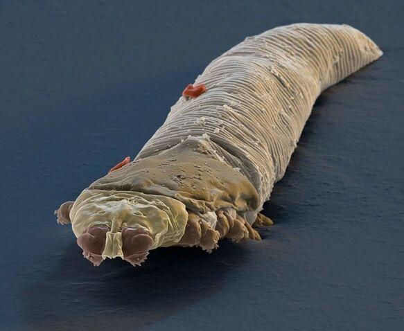 pinworm geohelmintus)